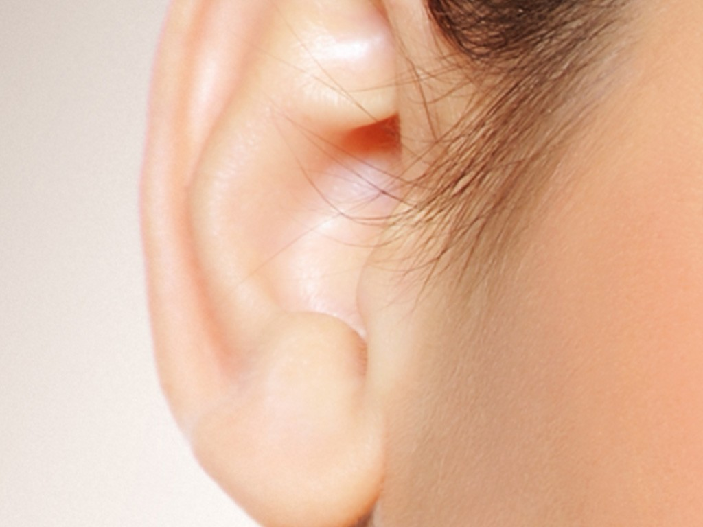 otoplasty - ear surgery Barrington, IL